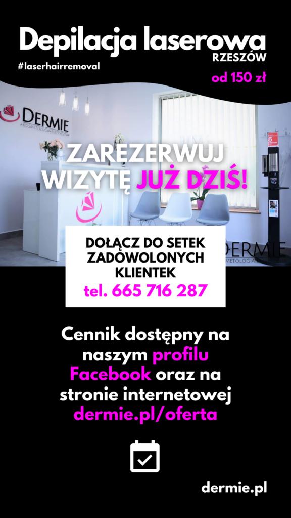 depilacja-laserowa-wakacyjna-promocja-3