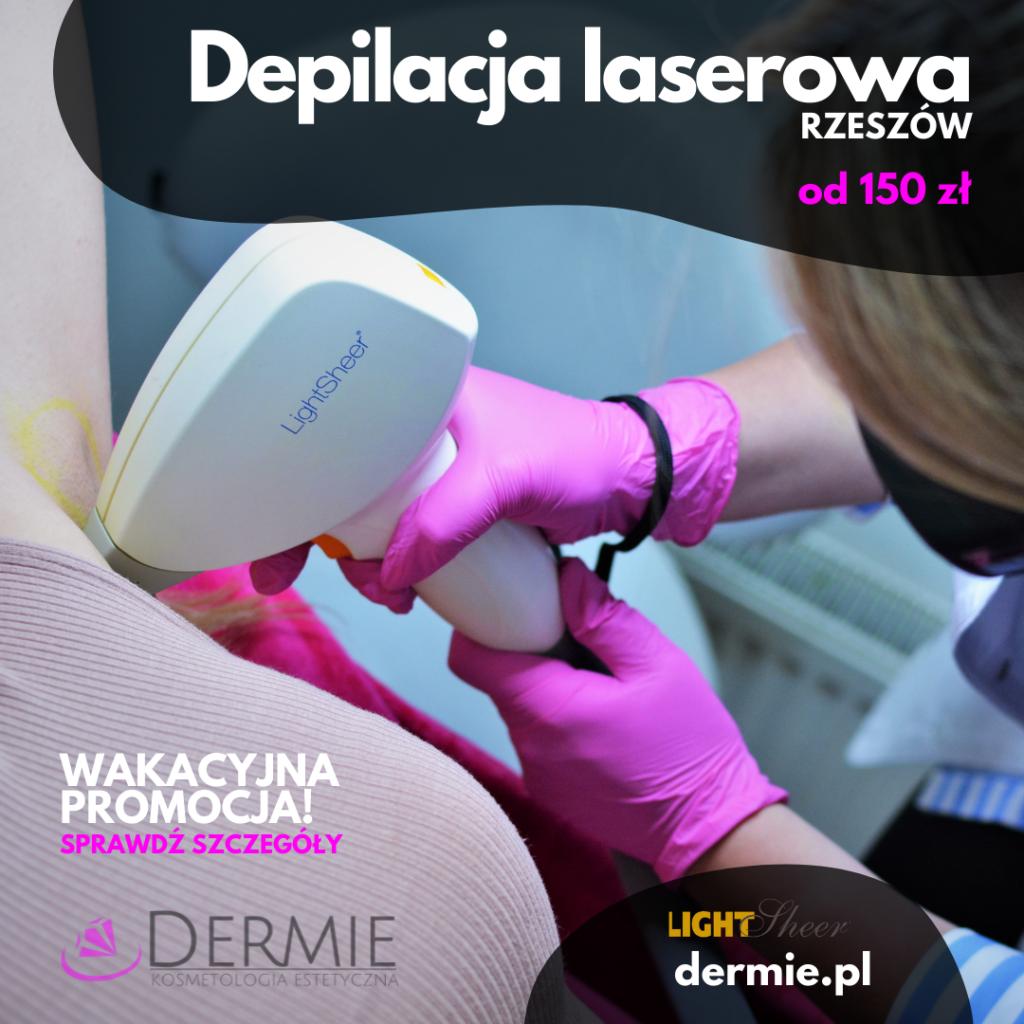dermie-depilacja-laserowa